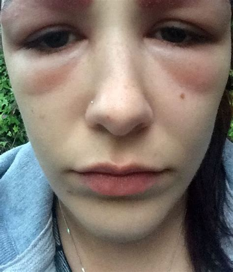 teen scarred after eyebrow tint treatment left her looking