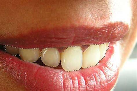 Dentasif Putih Untuk Lem Gigi Palsu 3 retouch foto memutihkan gigi dengan photoshop