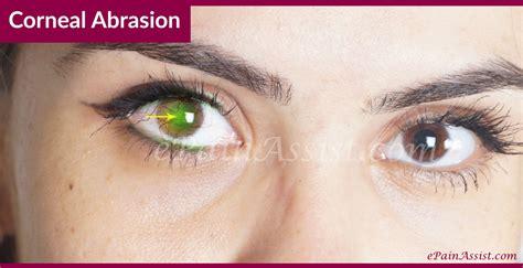 corneal abrasion causes symptoms treatment antibiotic