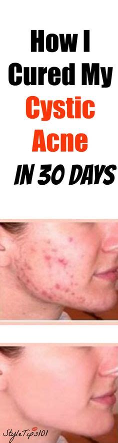 Cystic Acne Detox Diet by How To Get Rid Of Cystic Acne With These 5 Simple