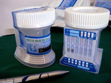 test delle urine thc narcotest