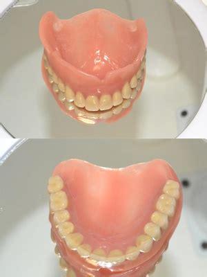 protesi totale mobile protesi mobile parziale e scheletrata studio dentistico