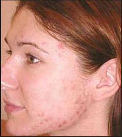 Acne Advice Blemish Free Skin by Use Photoshop To Remove Blemishes Pimples And Moles