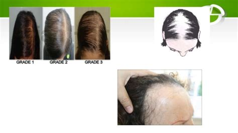 christmas tree pattern hair loss update on female pattern hair loss2