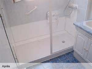 remplacement baignoire par prix calais design