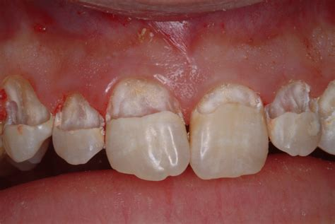 decay removed  teeth showing underlying tooth