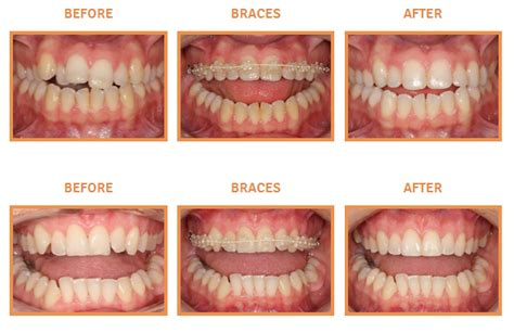 how to fix crooked teeth at home orthodontics the dental
