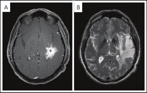 tesla mri pictures to pin on pinsdaddy