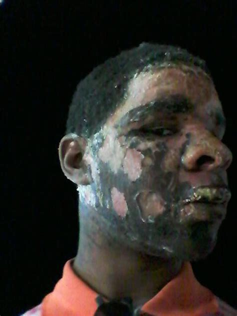 photos of hot water burns inmate s face burned by hot water during stay at harris