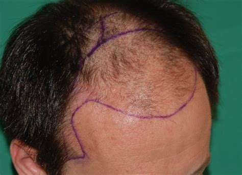 haircuts for those with alopecia haircuts hair loss hairstyle dreams hair loss alopecia
