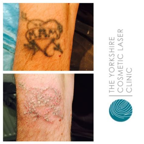 tattoo removal huddersfield the cosmetic laser clinic ltd removal