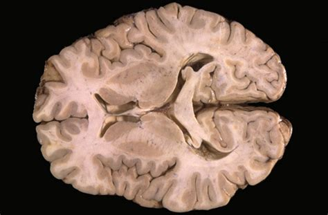 transverse brain section neuroanatomy