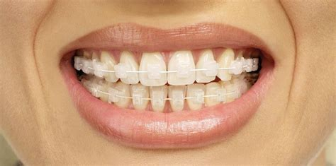 Dijamin Clear St Smile Invisible Braces 100 Images Invisible Braces Common
