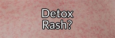 Vegan Detox Caused Bloutchy Itchy Skin by Detox Rash Myth Or Fact