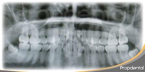 rx horizonte imagenes medicas y odontologicas tipos de radiograf 237 a dental imax