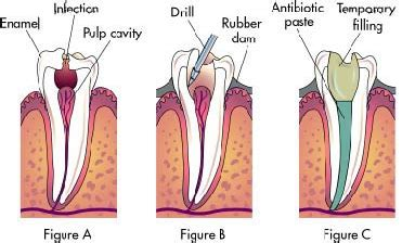 root canal diagram root canals root canal dentist sunnyvale ca 94086