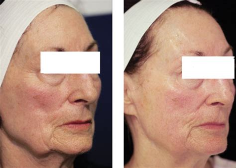 jowls and sagging around mouth treatment jowls and sagging around mouth pelleve treatment