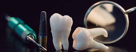 imagenes odontologicas gratis foro gratis implantes dentales