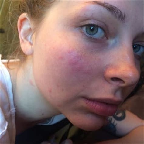 bed bug bite on face the pines resort bed bug bites on the face after our
