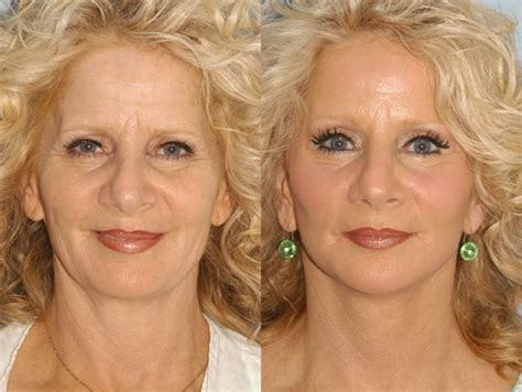 facelifts for women over 60 56 year old lower facelift forehead lift drpaulblair