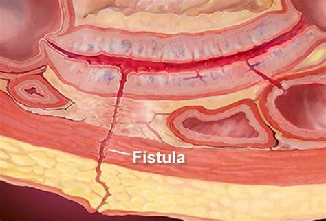 diversi tipi di vagine fistola