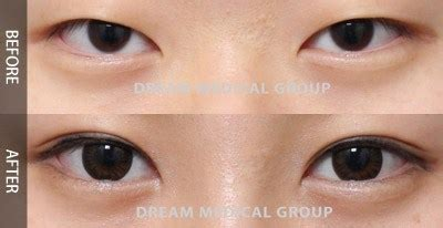 Has Disfigured Eyelids 2 by If You Want To Be Beautiful You Ll To Buy A New