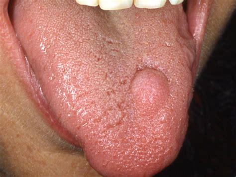 infezione guancia interna malattie orali