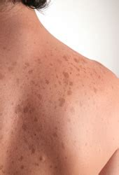 african american skin disorders fort lauderdale skin discoloration freckles age spots dermatologist