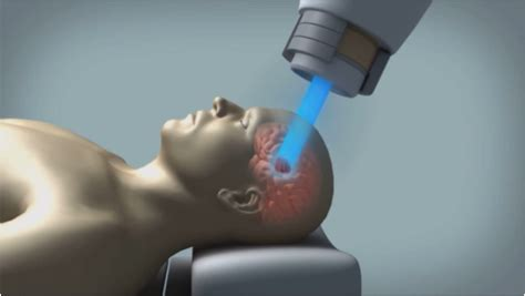 Proton Therapy For Cancer by Proton Therapy Has Fewer Side Effects In Esophageal Cancer