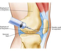 arthritis definition of arthritis by the free dictionary joint aspiration definition of joint aspiration by