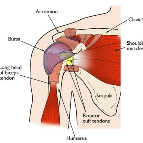 torn rotator cuff diagram best fitness and nutrition tips for healthy living brouk