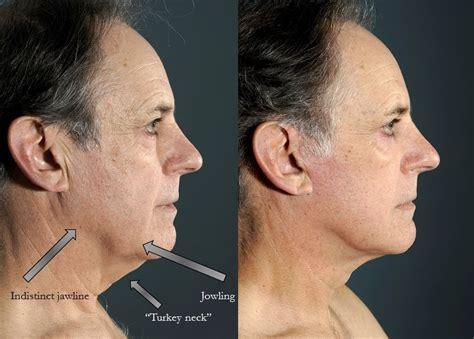lower face and neck lift best facelift new york city lara devgan md mph facs