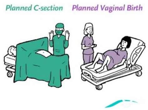 C Section Or Normal Birth by