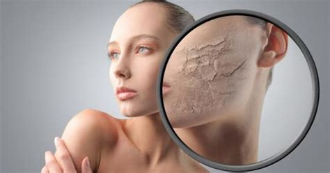 Obat Alami Kulit Wajah Mengelupas penyebab utama kulit wajah mengelupas dan cara