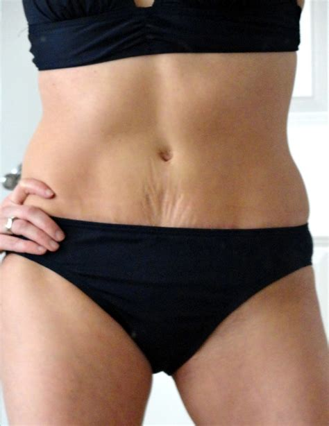 six pack abs after c section tummy tucks bikini bodies and bikinis on pinterest