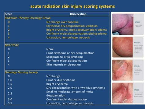 Management Of Acute Radiotherapy Induced Skin Reactions A Literature Review by Radiotherapy And Skin Reaction