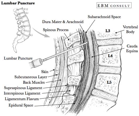 how long does a spinal block last for c section procedure how to do a lumbar puncture