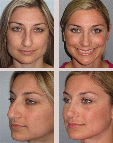 photo gallery before and after cosmetic surgeon in the nose surgery rhinoplasty before and after photos