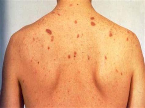B Skin yellow skin jaundice symptoms causes diagnosis autos post