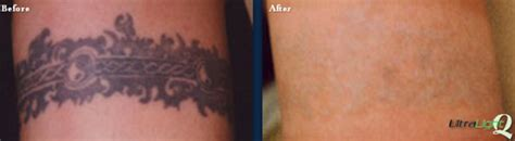 non surgical tattoo removal removal tn the langsdon clinic germantown