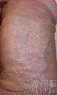 skin colored bumps on penile shaft fordyce spot on