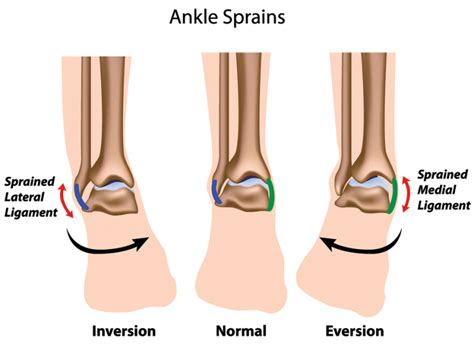 how long does swelling last after c section ankle sprain treatment twisted ankle the stone clinic