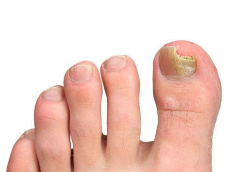 tratamiento de hongos y megabacterias 191 c 243 mo tratar los hongos en los pies