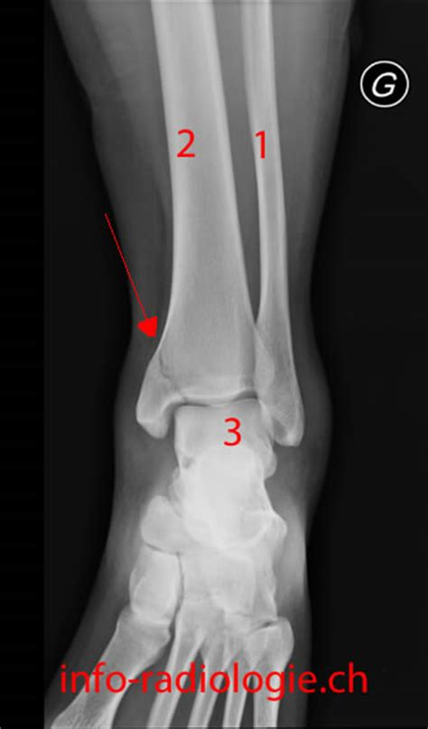 malleolo tibiale interno fracture mall 233 ole interne