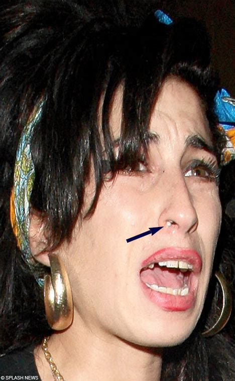 Winehouses Scarlet Nose Hints That Recent Troubles Are Taking Their Toll by You Been To Powder Your Nose Winehouse