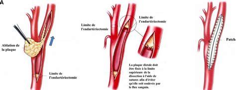 stenosi carotide interna st 233 nose 232 re carotide ath 233 roscl 233 examen
