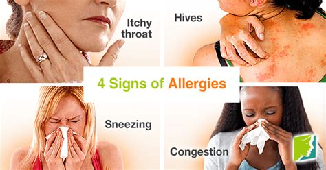 symptoms of allergies 4 signs of allergies