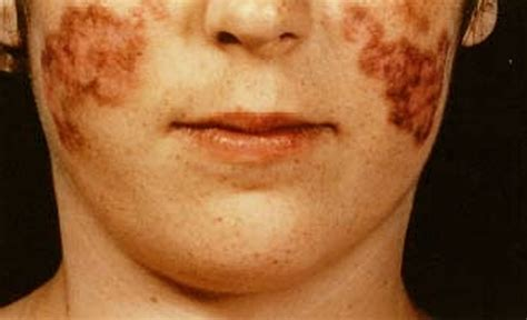 systemic lupus erythematosus pictures symptoms causes