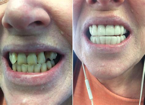 clip  teeth veneers  change
