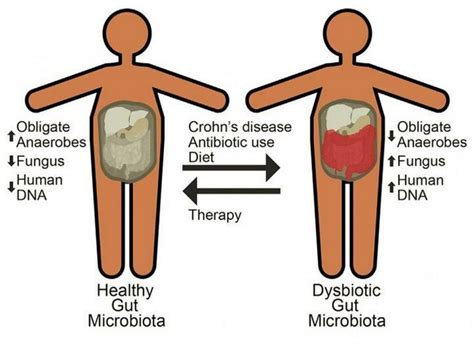 Symptoms Of Crohn S Disease And What You Should Do About